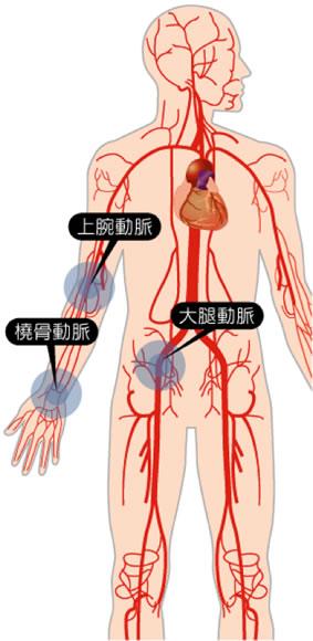 心臓カテーテル検査イメージ
