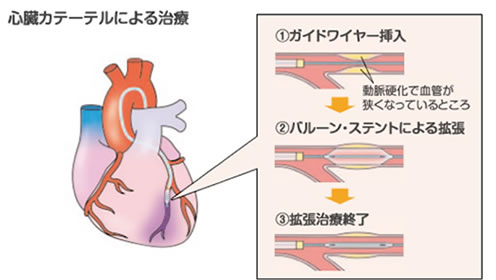 心臓カテーテルによる治療