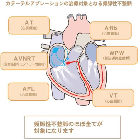 カテーテルアブレーションの治療対象となる頻脈性不静脈